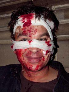 Halloween aktuelle Trends Schwerverletzter