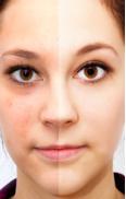 Augenringe & Augenränder – Ursachen und Tipps