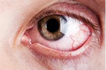 Trockene Augen – Ursachen und Abhilfe