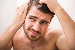 Haarausfall-beim-Mann