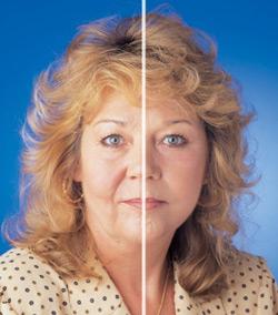 Eyesential-vorher-nachher-vergleich