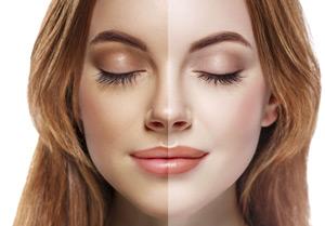 Gesichtsbräuner | Höhensonne - Vorher-Nachher Vergleich